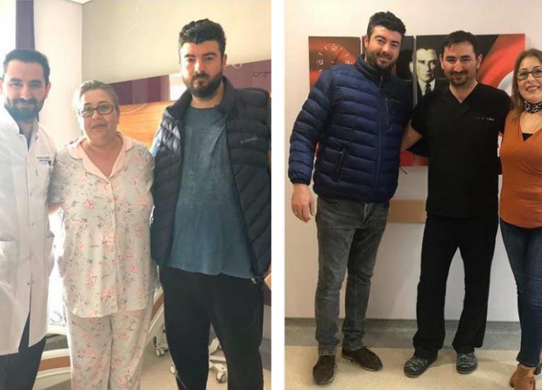 obezite-ameliyatı-öncesi-sonrası-2